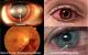Dr. J.Deol Family Eye Care